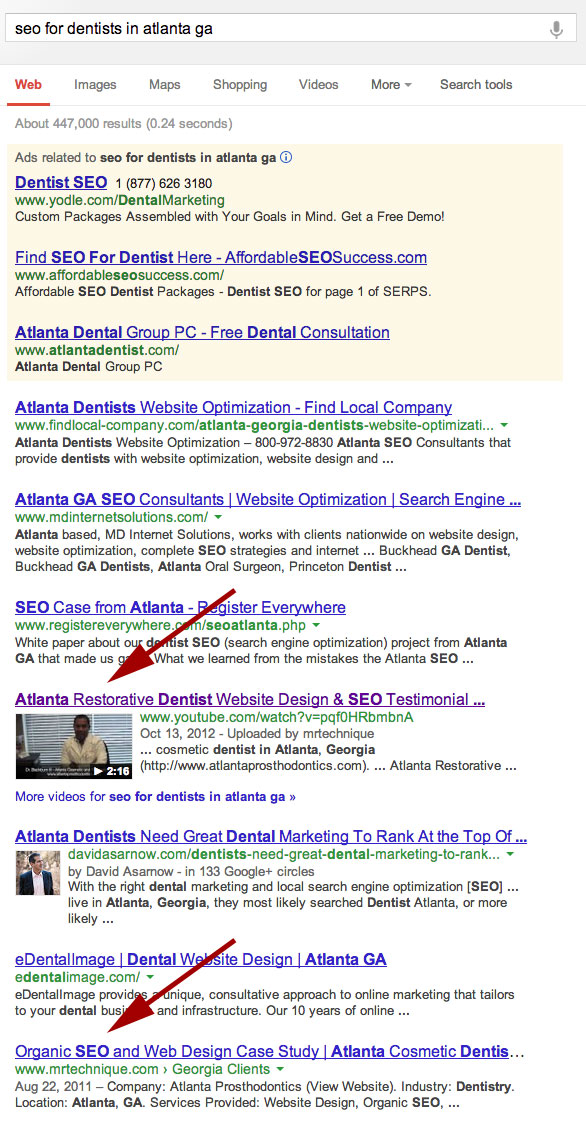 Atlanta SEO Services for Dentists SERP